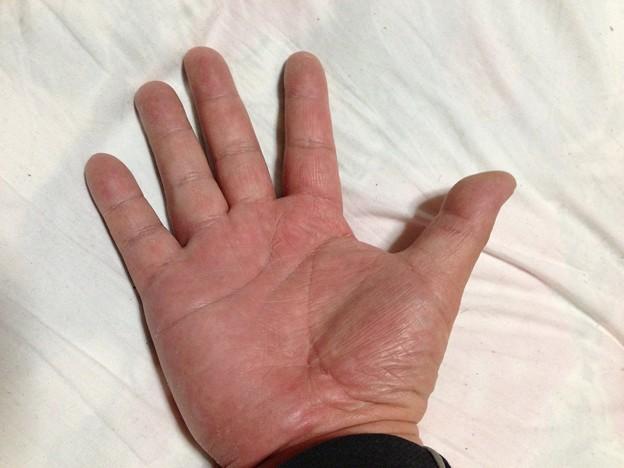 写真: 治った手