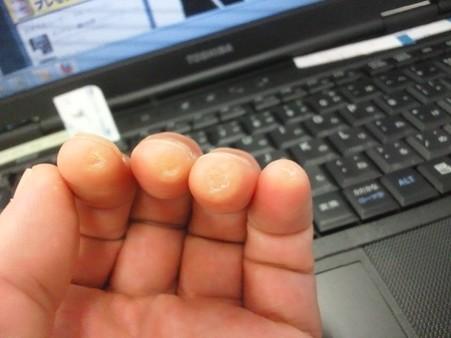 ひさびさタコ通信。爪切りの刃の角で角質層を思い切って引っ剥がした。エエ感じ。そうか、こうやるのか。写真二枚。1