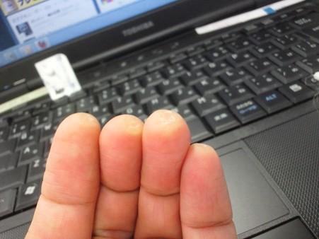 ひさびさタコ通信。爪切りの刃の角で角質層を思い切って引っ剥がした。エエ感じ。そうか、こうやるのか。写真二枚。2